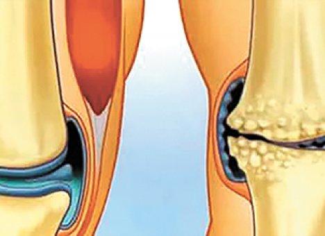 Боли при артрозе поможет облегчить гимнастика