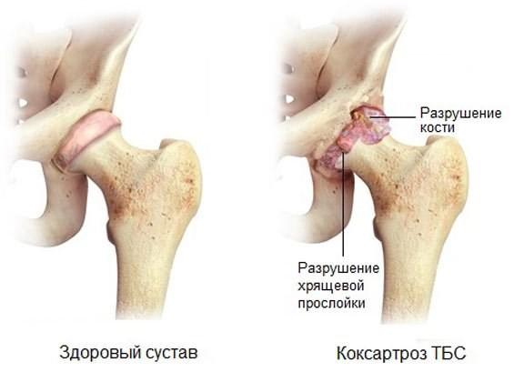 Сравнительная анатомия здорового и больного тазобедренного сустава