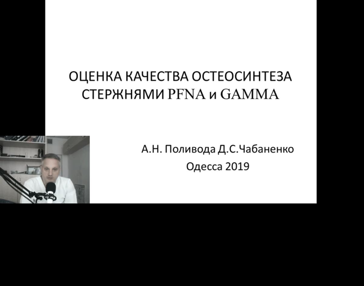 Оценка качества остеосинтеза стержнями PFNA и GAMMA